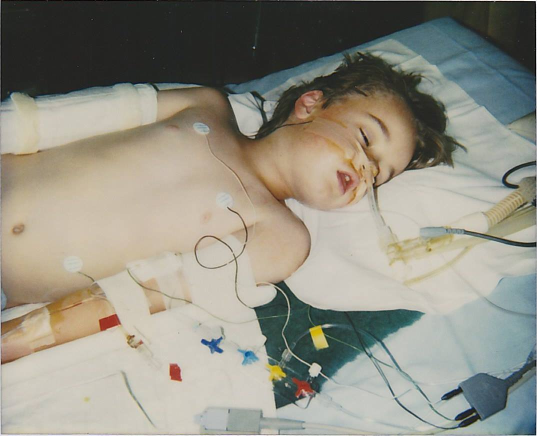 Jeremy - Coma RCH 1998